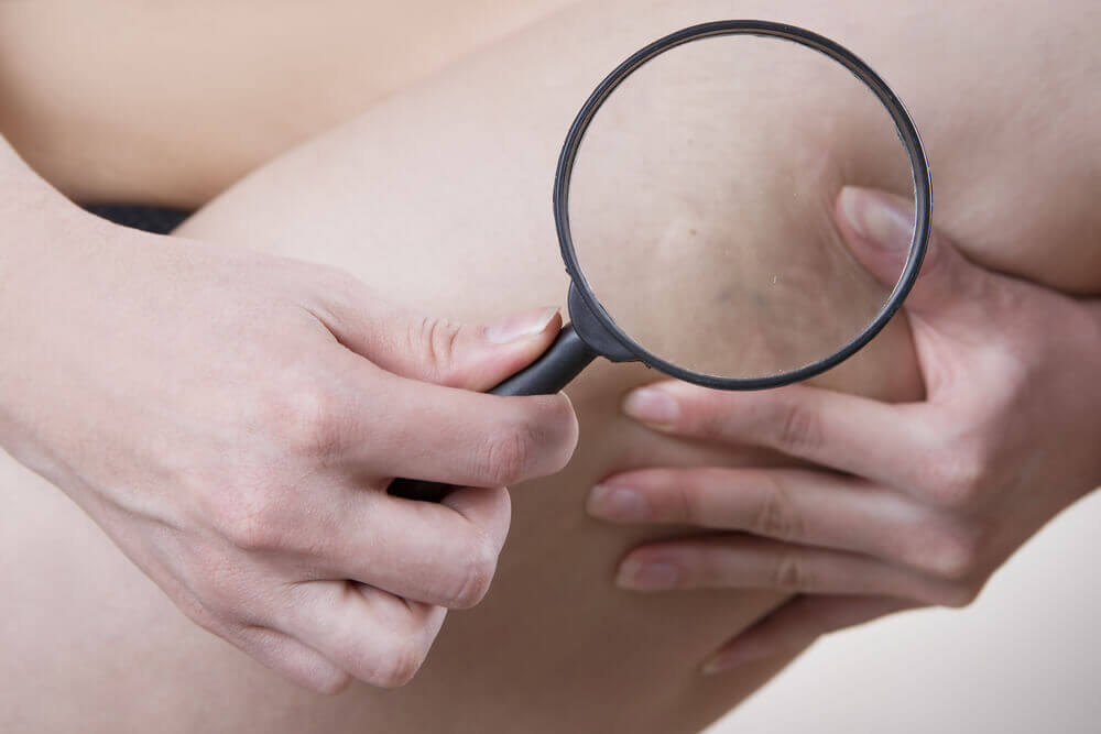 Varicose veins close up under a magnifying glass
