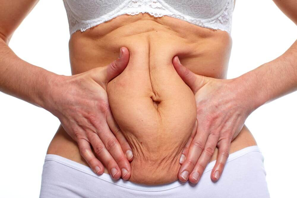 Woman fat belly. Overweight and weight loss concept